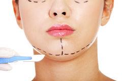Tabac et chirurgie esthétique : incompatibles